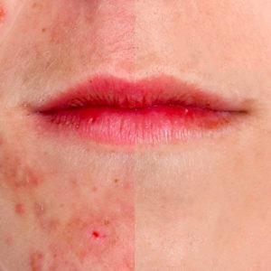 Curare l'acne senza farmaci